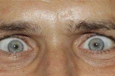 Wyjątkowy kolor oczu? Już nie.