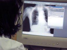 Mężczyźni są bardziej podatni na zakażenie koronawirusem z powodu większego stężenia pewnego enzymu w płucach.