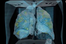 Płuca zainfekowane koronawirusem.