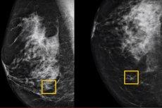 AI przewiduje raka piersi na podstawie mammogramu dokładniej niż radiolog - takie wnioski płyną z badania przeprowadzonego przez międzynarodowy zespół ekspertów z m.in. Google, Northwestern Medicine i dwóch centrów badań przesiewowych w Wielkiej Brytanii
