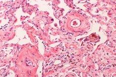 Naukowcom udało się wydrukować skórę wraz z naczyniami krwionośnymi. To przełom w transplantologii i biodruku.