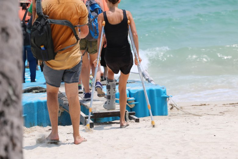 Ubezpieczenie NNW w podróży pozwoli ubiegać się o odszkodowanie za taki wypadek na wakacjach jak chociażby złamanie nogi.